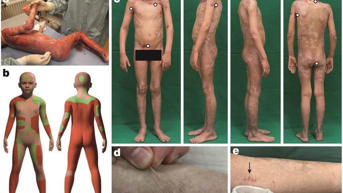 (a)Avant l'opération (b) En rouge, les zones du corps à vif ; en vert, les zones avec des cloques. C'est sur ces zones que les greffes ont été faites (c) Après l'opération, le patient a récupéré une peau normale, à l'exception de quelques rares zones (d) La peau est normalement élastique (e) Après la greffe, les médecins ont réalisé une biopsie de la peau. Celle-ci s'est régénérée normalement.
