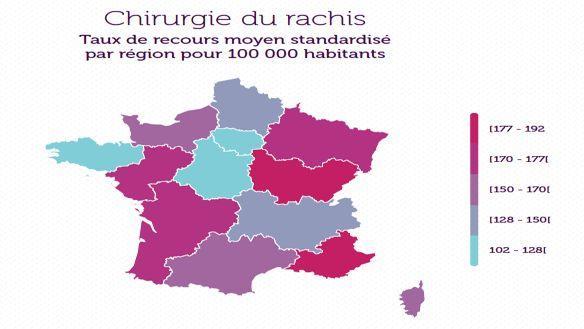 En 2016 en France, il y a eu en moyenne 151 opérations du rachis pour 100.000 habitants.
