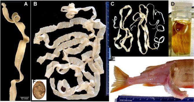 (A) Diphyllobothrium dendriticum découvert chez un humain ; (B) Diphyllobothrium latum découvert chez un humain ; (C) Adenocephalus pacificus provenant d'un phoque ; (D) Diplogonoporus braunl provenant d'un homme ; (E) Une perche infectée par des larves ; (F) Des larves retrouvées chez un homme