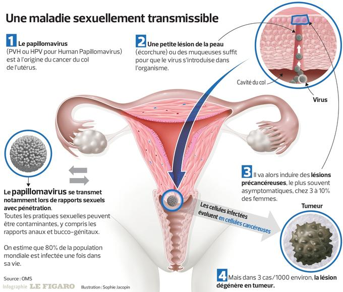 Recherche papillomavirus femme [PUNIQRANDLINE-(au-dating-names.txt) 29