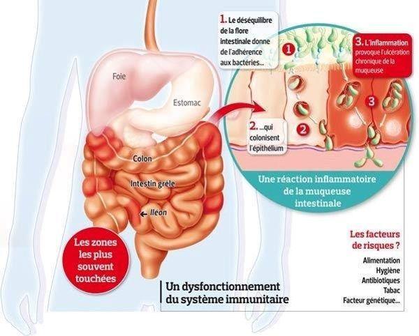 La maladie de Crohn, quel mécanisme?
