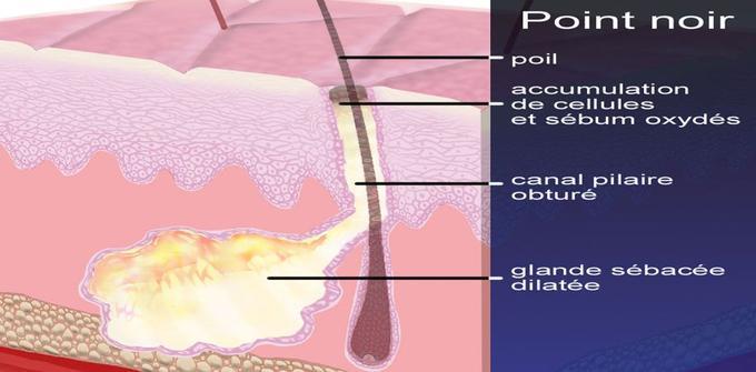 Le point noir doit sa couleur à l'oxydation des cellules contenues dans le sébum.