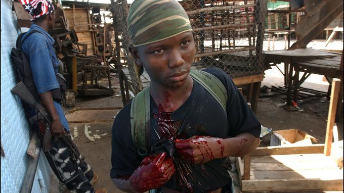 Liberia, 2003. Touché en pleine poitrine, cet enfant-soldat de Charles Taylor succombera quelques minutes plus tard.