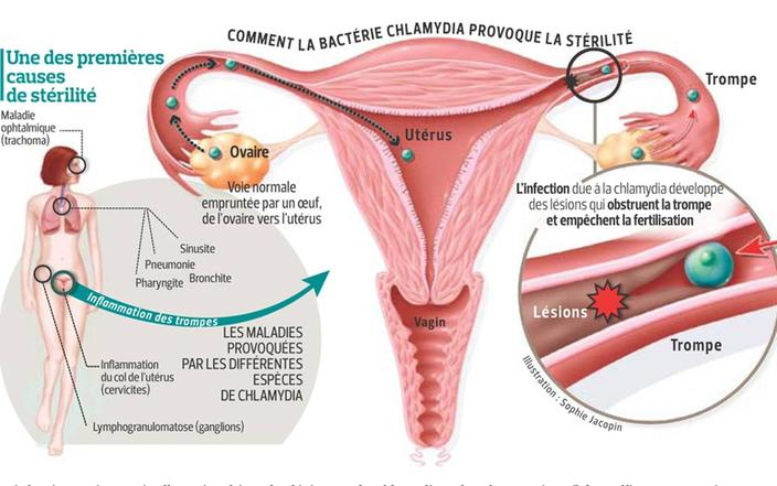 recherche de chlamydia trachomatis chez lhomme)