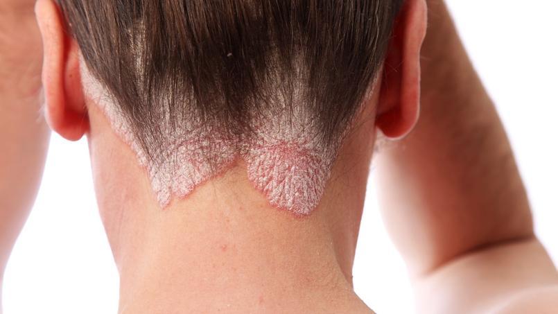 remede psoriasis peau