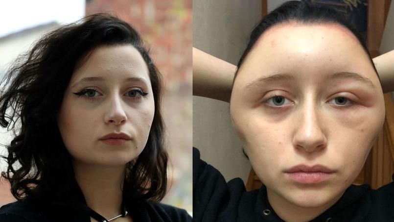 257a1465ccf89c Coloration pour cheveux: une jeune femme met en garde contre le ...