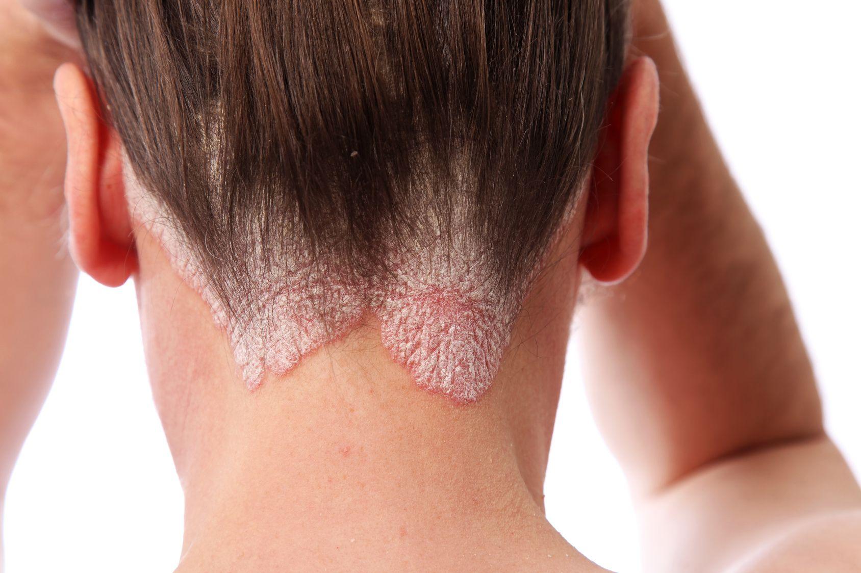 psoriasis traitement cheveux)