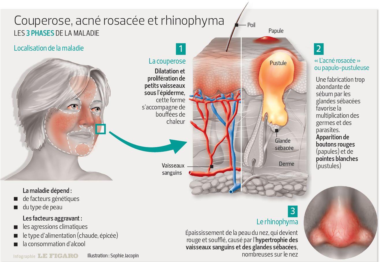 traitement rosacee par homeopathie