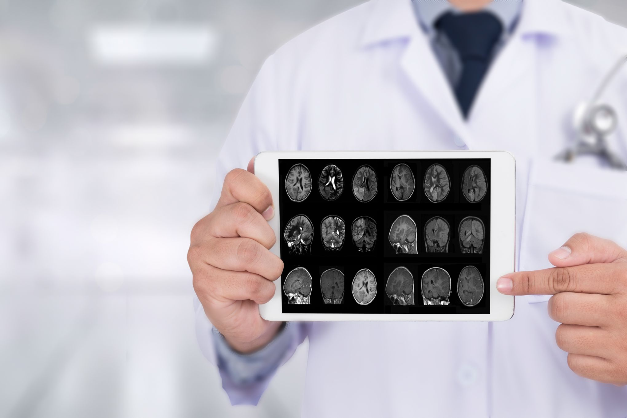 Une nouvelle piste pour expliquer Alzheimer