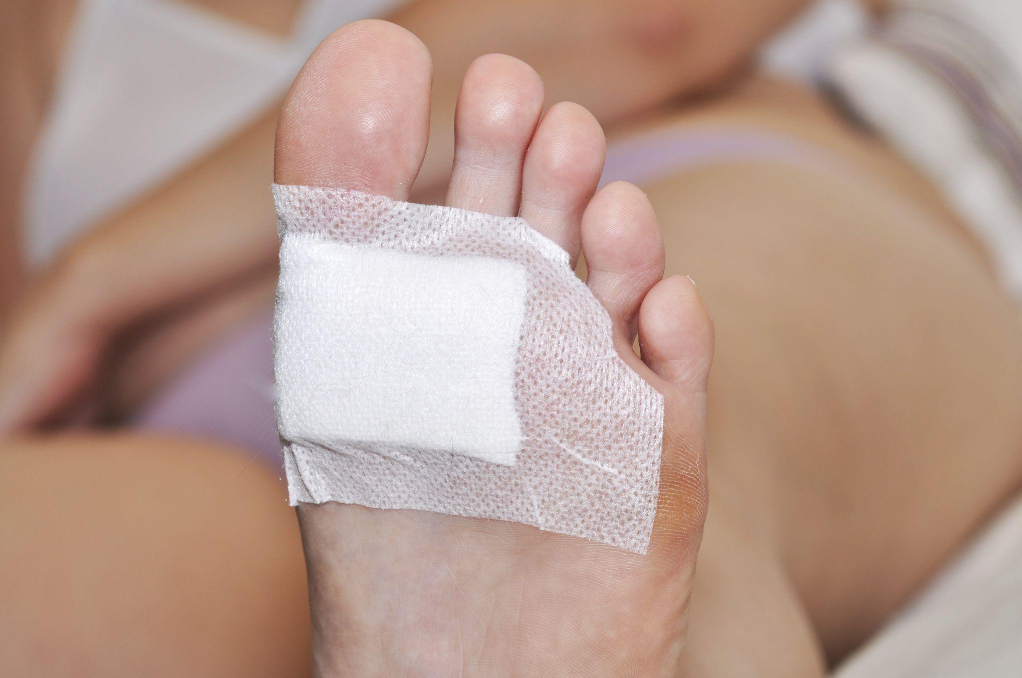 ulcere doigt de pied