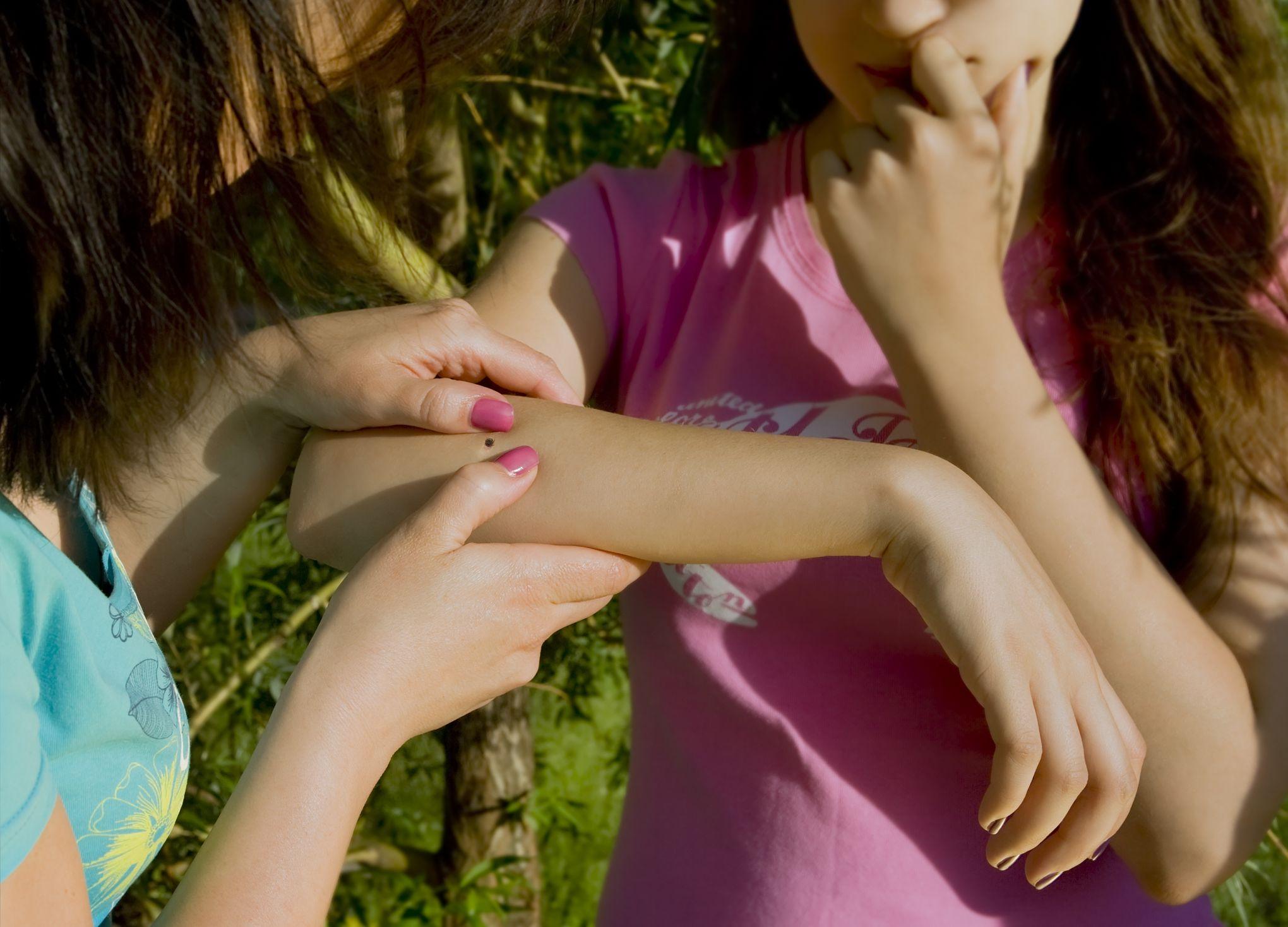 Cinq choses à faire en cas de morsure de tique