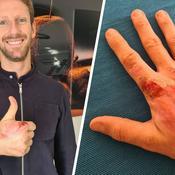 Romain Grosjean montre l'état de sa main droite meurtrie sans son bandage