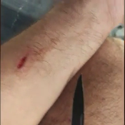 Vendée Globe: Damien Seguin s'est blessé à un bras... «Ça pissait le sang»