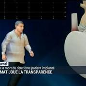 Carmat joue la transparence