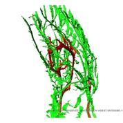 La distribution en 3D des nerfs dans le pied d'un fœtus de 9 semaines
