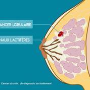 Quels sont les différents types de cancers du sein ?