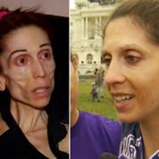 L'incroyable transformation d'une femme victime d'anorexie morbide