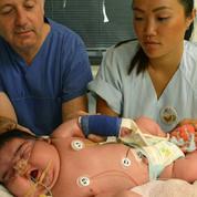 En surpoids avant même de naître