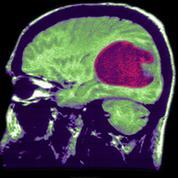 Espoir dans la lutte contre un cancer du cerveau incurable