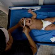 Zika: première naissance d'un bébé microcéphale en Europe