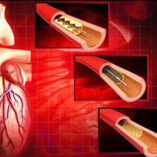 Des prothèses synthétiques pour réparer les artères