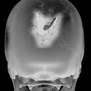 Prédire la sortie du coma grâce à l'imagerie médicale