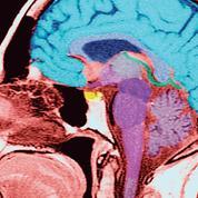 Schizophrénie: les troubles cognitifs seraient liés à l'inflammation cérébrale