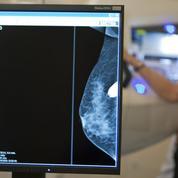 Cancer du sein: 93mutations génétiques impliquées