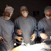 Appendicite: chute du nombre des opérations en 25 ans