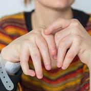 Cinq idées reçues sur les maladies articulaires