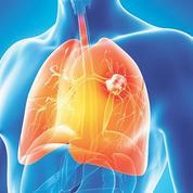 Cancer du poumon: pas de dépistage organisé en France
