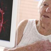 Infarctus du myocarde: les facteurs de risque sont bien connus
