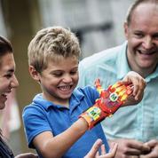 L'impression 3D permet d'accéder à des prothèses low cost