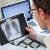 L'immunothérapie bouleverse la prise en charge du cancer avancé du poumon