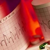 Insuffisance cardiaque: mal dormir double le risque d'hospitalisation