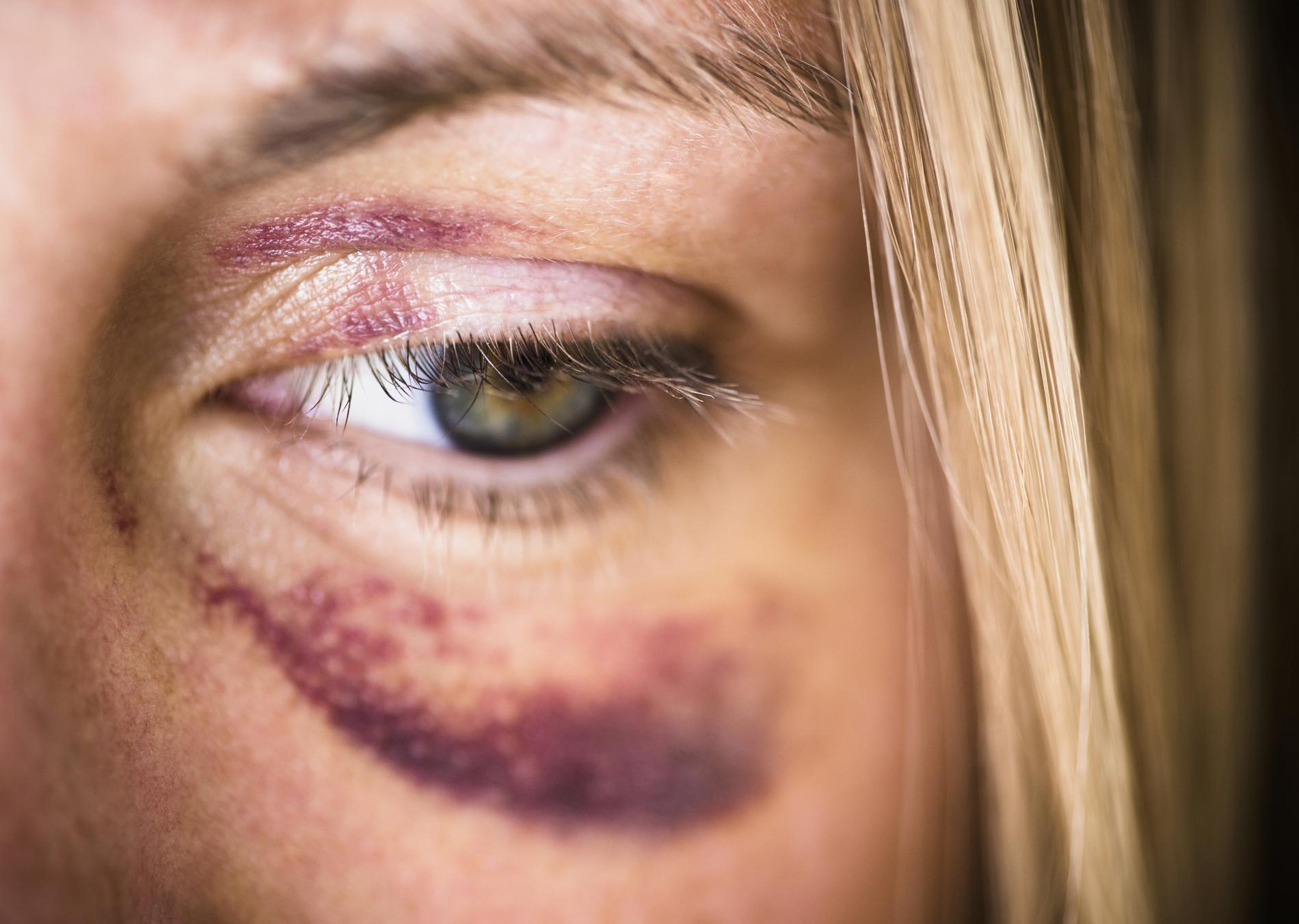 violences faites aux femmes l 39 horreur en 10 chiffres. Black Bedroom Furniture Sets. Home Design Ideas