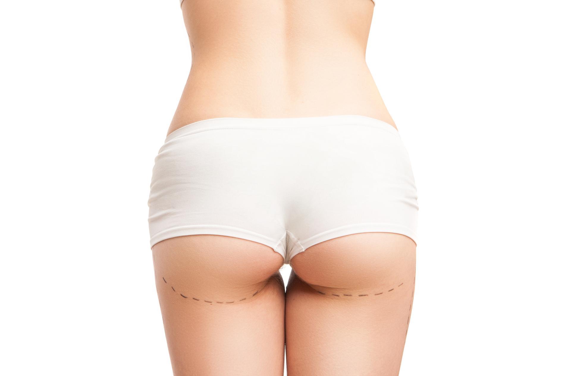 Entre la résorption de l œdème et l élimination de la graisse qui n a pas  été vascularisée - en moyenne de 30 % à 50 % du volume injecté - 55e8b45586f