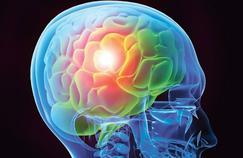 Contre les maux de tête, des traitements plus nombreux