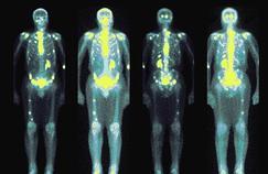 Métastases : une protéine ouvre des perspectives