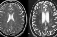 Comment éviter d'avoir un accident vasculaire cérébral
