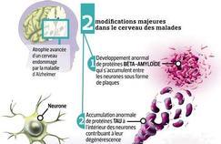 Alzheimer: un grand défi pour la médecine