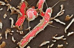 Les cancers de l'estomac causés par une bactérie?