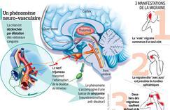 Migraine: la recherche explose