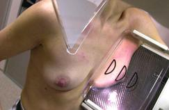 Les cancersdu sein et de la prostate, les plus fréquents