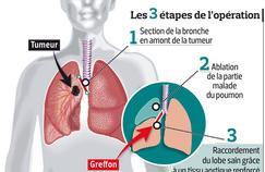 Cancers du poumon: l'espoir des greffes de bronche artificielle