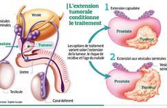 Vrais progrès autour du cancer de la prostate