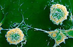 La recherche avance sur les causes de la sclérose en plaques