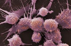 Comment savoir si un cancer de la prostate est agressif