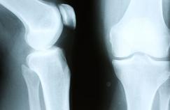 Un implant «vivant» mis au point pour traiter l'arthrose