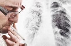 Encore trop de fumeurs après un cancer